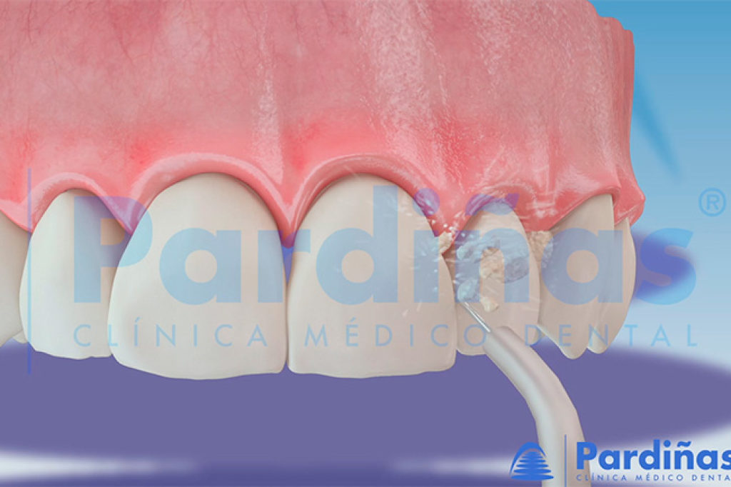 El irrigador bucal es un complemento ideal para la higiene dental